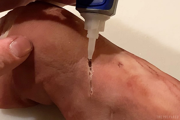 how to glue a wound