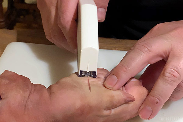 how to staple a wound