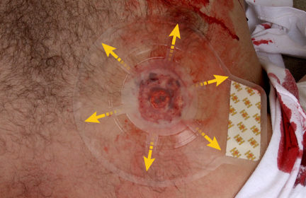 vented chest seal
